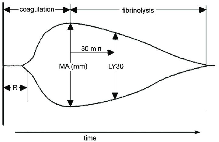 thromboelastograph