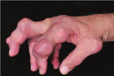 tophaceous gout