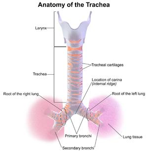 trachelitis