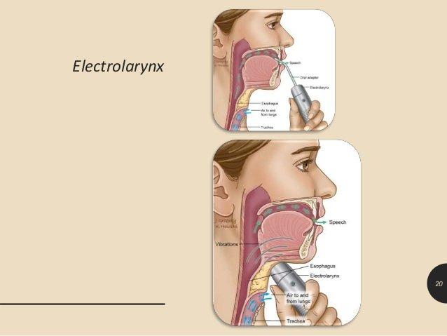 tracheopharyngeal