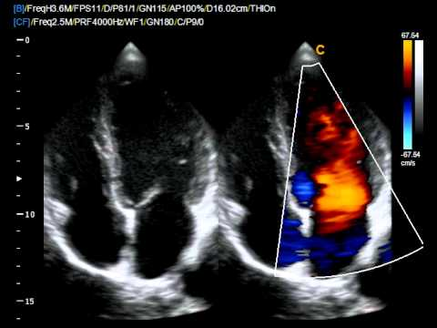 ultrasound cardiography
