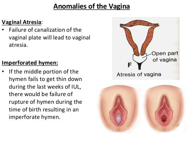vaginal atresia