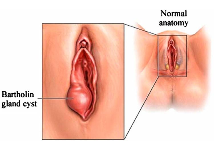 vaginal gland
