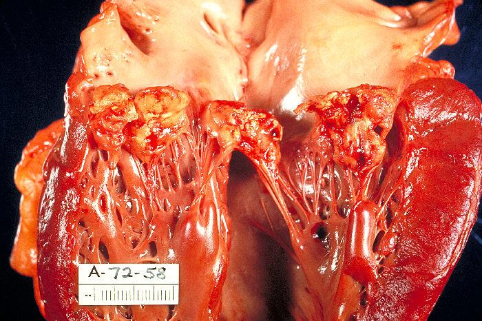 valvular endocarditis
