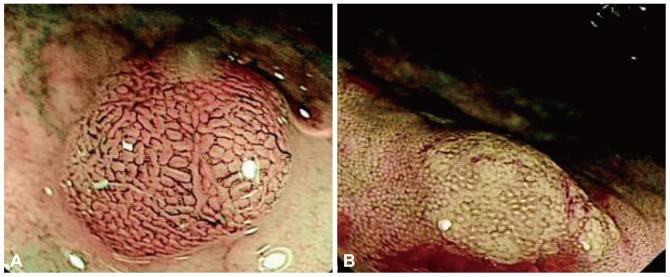 vascular polyp
