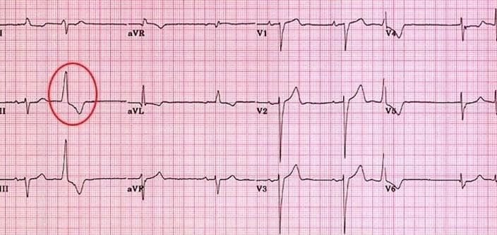 ventricular complex