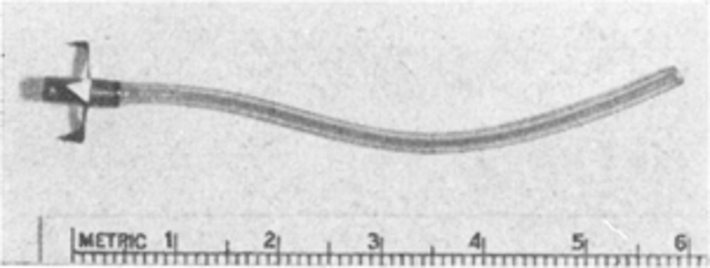 ventriculomastoidostomy