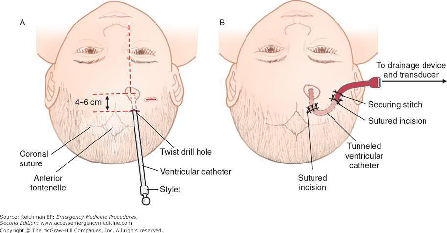 ventriculopuncture