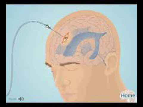 ventriculostomy