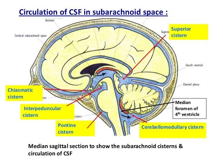 ventriculosubarachnoid