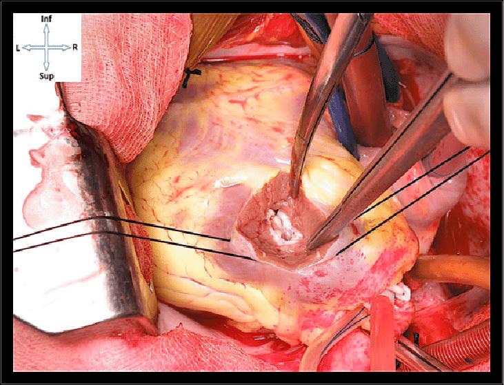 ventriculotomy