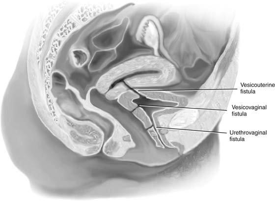 vesicouterine fistula