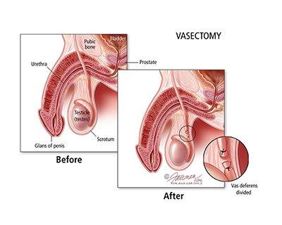 villusectomy