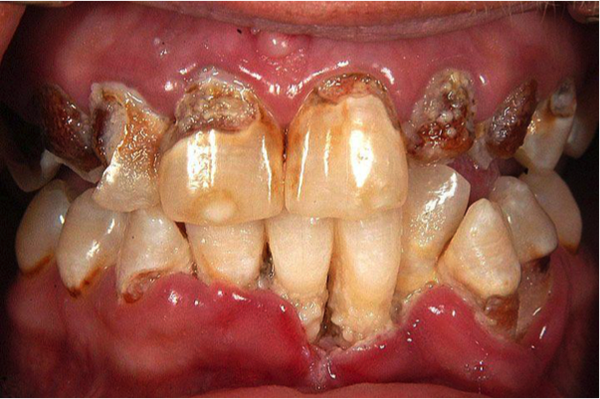 vincent's disease