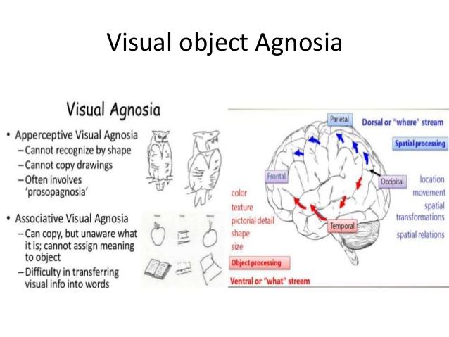 visual aphasia