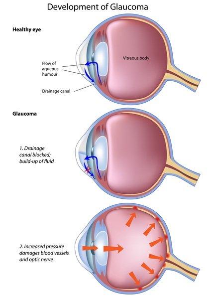 vitreous hernia
