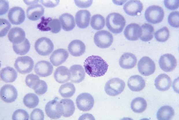 vivax malaria