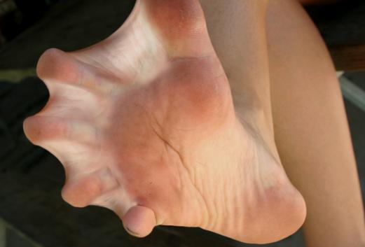 web-toed