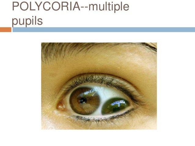 westphal-piltz pupil