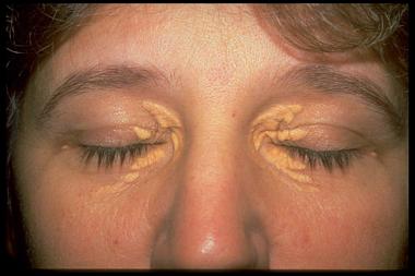 xanthoma palpebrarum