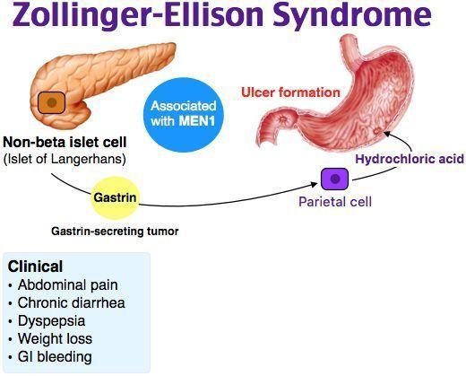 zollinger-ellison syndrome