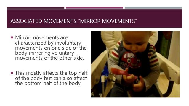 associated movement