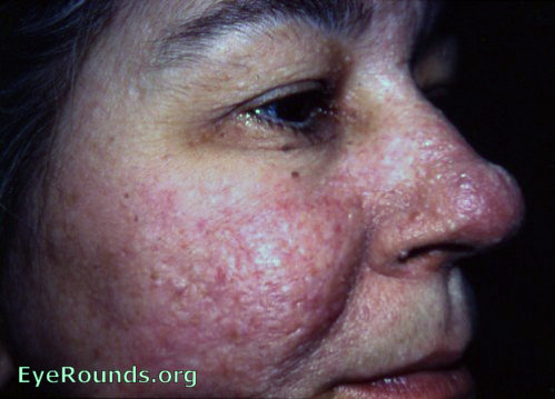 bourneville's disease