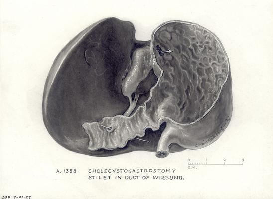 cholecystogastrostomy