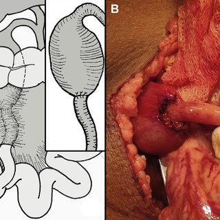 cholecystoileostomy
