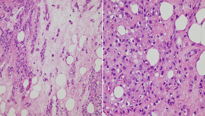 chondroid tissue
