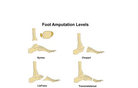 chopart's amputation