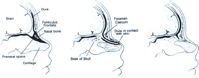 fonticulus