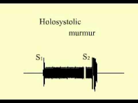 holosystolic