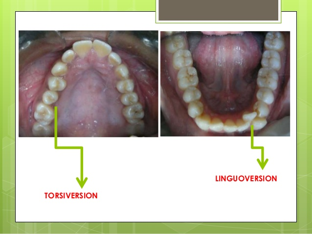 linguoversion