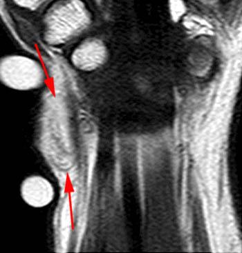 lipoma sarcomatodes