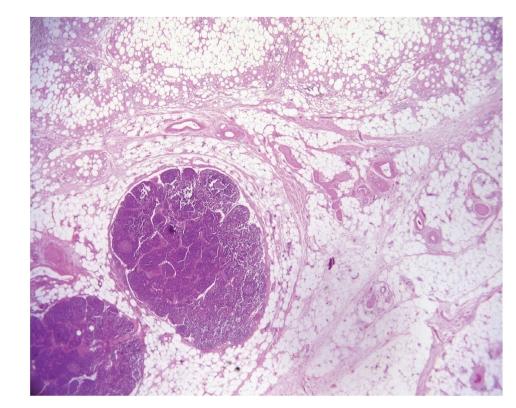 lipophagic