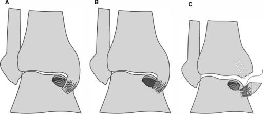 malleotomy