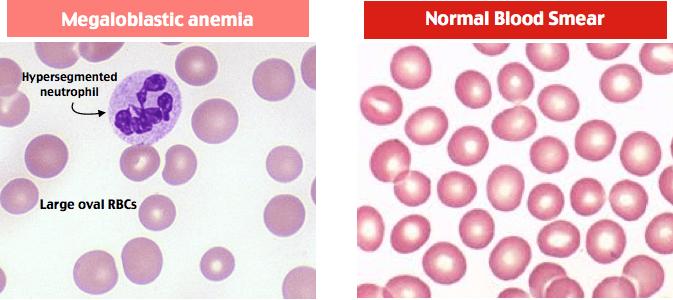 megaloblastic anemia