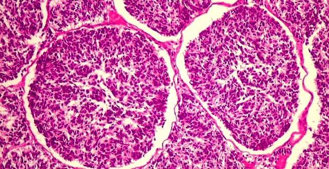 melanoblastoma