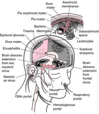 meningo-osteophlebitis
