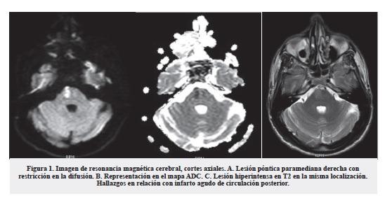 meningovascular