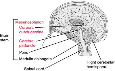 mesencephalitis