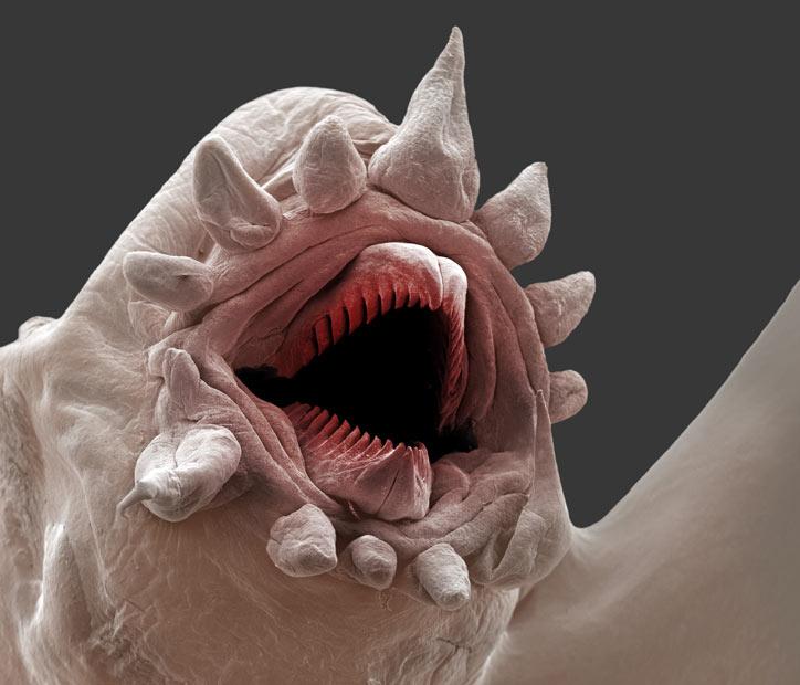 microscopically