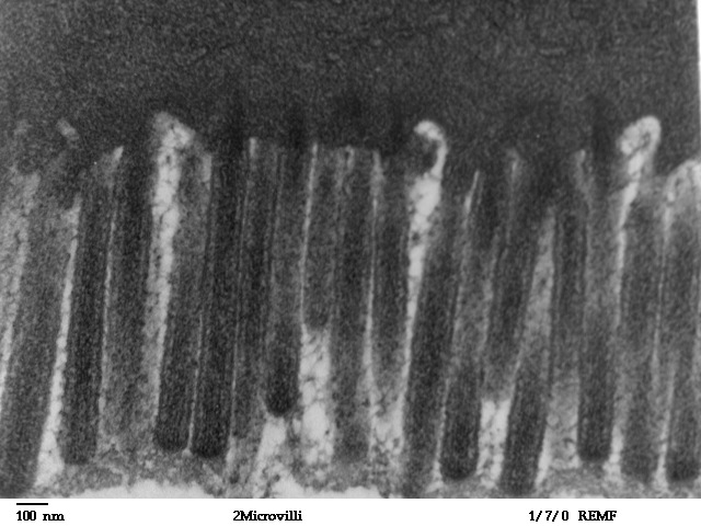 microvillus