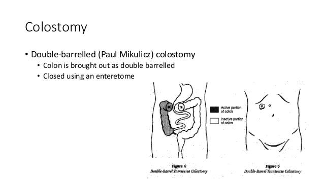 mikulicz operation