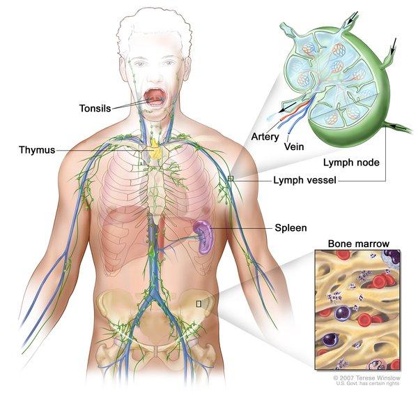 milroy's disease