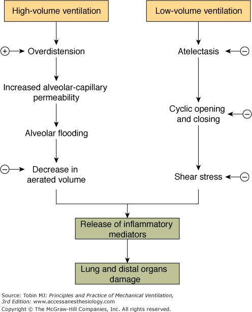 negative end-expiratory pressure