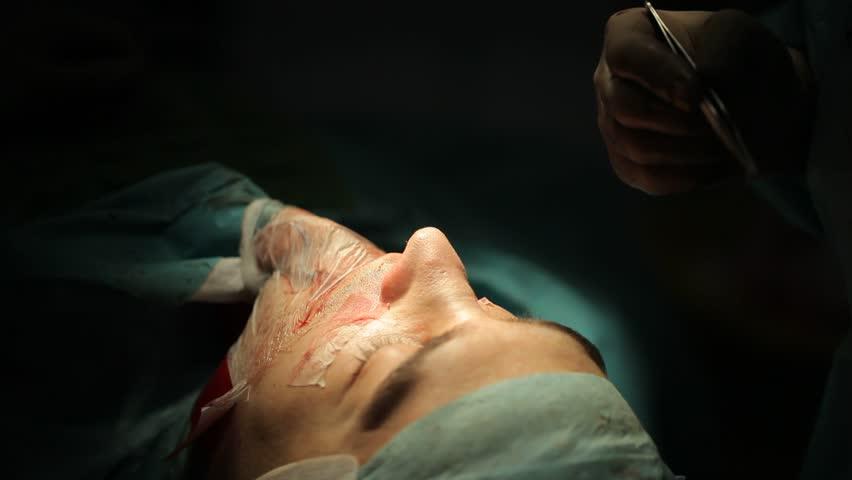 neoplasty