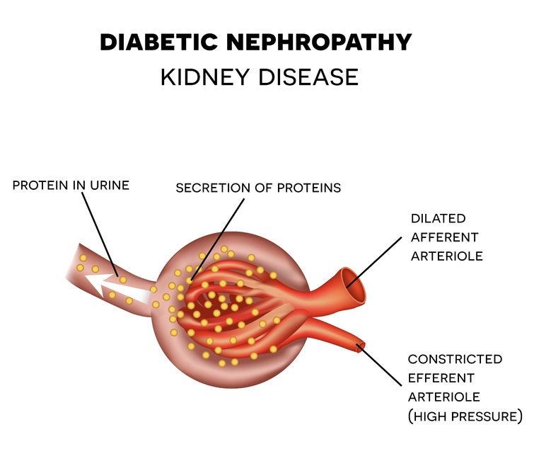 nephropathy