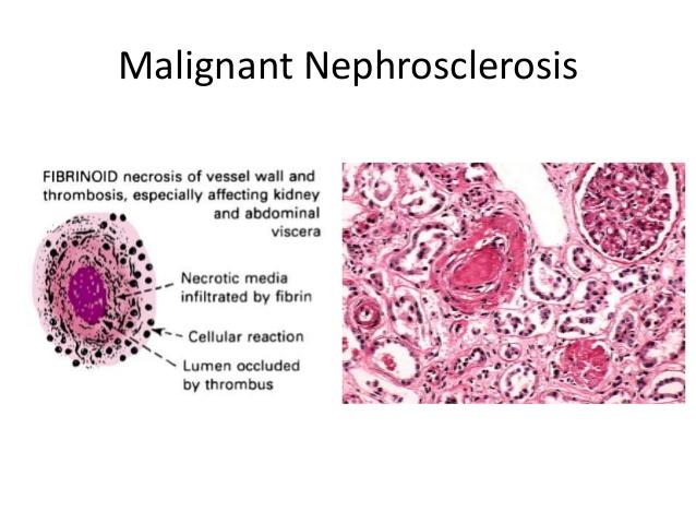 nephrosclerosis